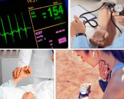 apensar electrocardiograma