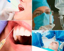 apensar inyeccion dentista