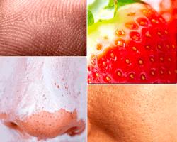 a pensar piel fresa