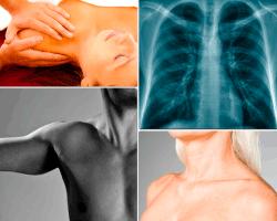 apensar radiografia de columna