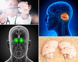 apensar imagen cerebro